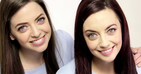 these girls may be the world s most unusual identical twins